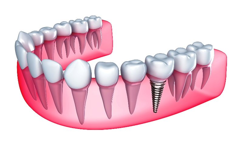 Sancaktepe implant